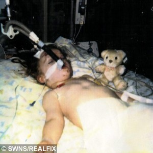 "Supposedly one of the ""last photos"" of Rebekah in intensive care; she wasn't expected to survive at this stage.  A young woman who defeated impossible odds of survival after a car accident as a child is set to run more than 5 km.  See MASONS story MNRUN; A woman who overcame near-impossible odds after a car crash when she was three years-old is about to run 5K for the charity which saved her life. Rebekah (corr) Cheshire had to re-learn virtually all the basic life skills - how to walk, talk, hear, sit, eat and see - after the horrific accident. Her mother was driving her to nursery in 1994 when she lost control on an icy road and ploughed into a 10ft ditch. Rebekah suffered two brain brain haemorrhages and had to be brought back to life twice in the ambulance on the way to hospital. Doctors told her mum Louise Donaldson to say goodbye to her daughter as scans showed an almost impossible chance of survival. And she was warned if Rebekah did make it there would be an 85 per cent chance she would need 24-hour care. But Rebekah, now 23, made an incredible recovery and lives semi-independently in Peterborough, Cambs. close to her family"