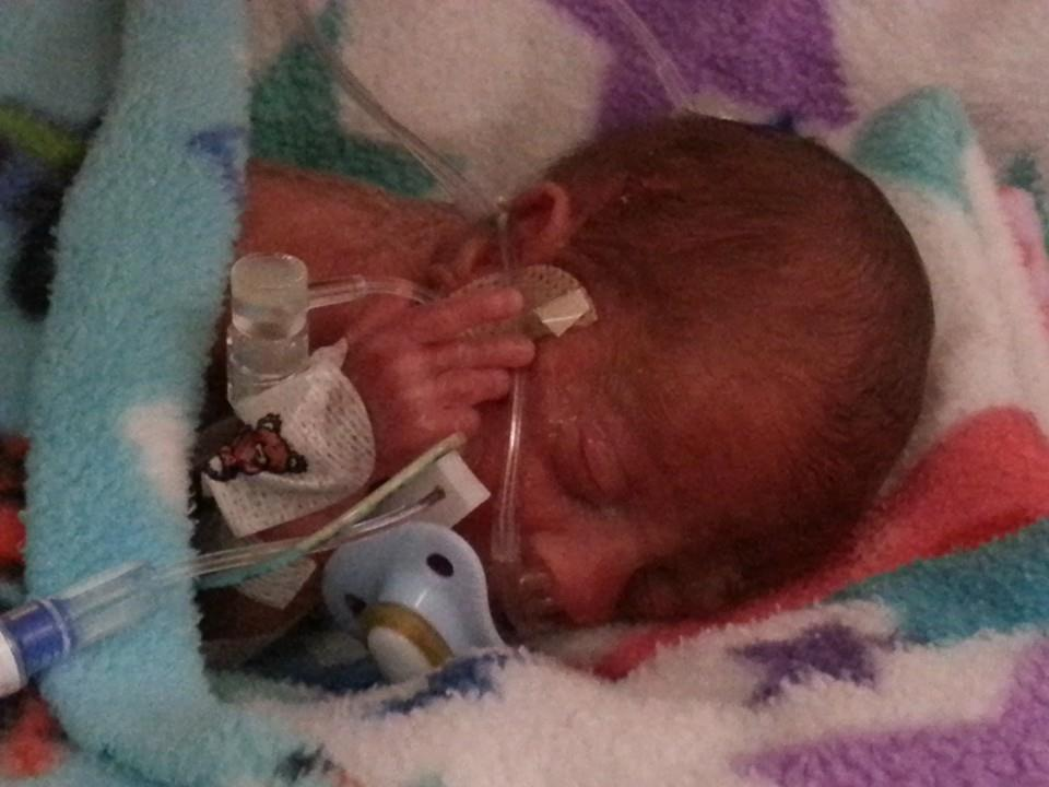 'Tennis ball' baby given 5% chance of survival. Could tiny Dexter defy the odds?