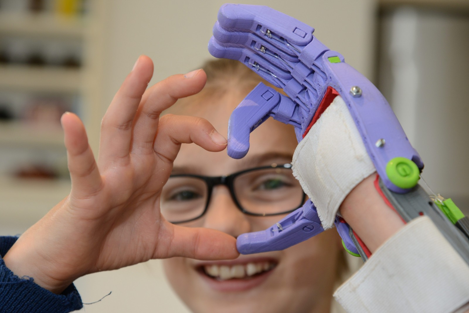 Schoolgirl gets a new prosthetic hand – built by her CLASSMATES!