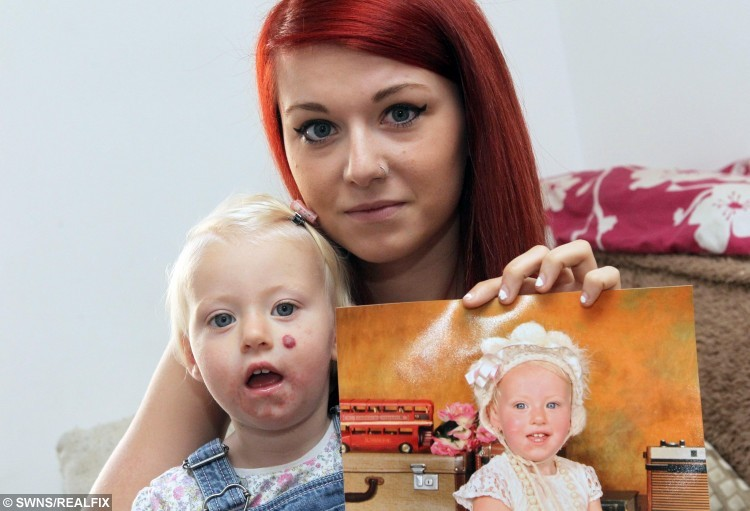 Lauren Holsten with her 18-month daughter Lexi Hudson.  A mum has slammed a company for airbrushing her daughter's birthmark out of a photo without her permission.  See MASONS story MNMARK.  Lauren Holsten took 18-month-old Lexi to The Forum to have her photo taken dressed in vintage clothing.  But when she collected the images a few weeks later she noticed the tot's strawberry naevus mark on her left cheek had been removed.  Upset, she returned to the shopping centre, along with Lexi's dad Dylan Hudson, 20, to question a representative of Domingo Photography, which took the image.