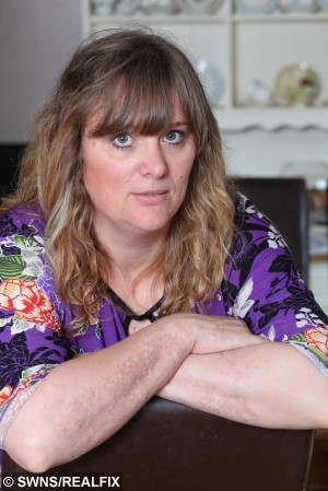 "Tracy Brookes aged 42, from Barnards Green, Malvern.  A mum is one of the latest victims of the hogweed plant to emerge in recent weeks, and says it was the ""worst pain"" she'd ever felt in her life.  See NTI story NTIHOGWEED.  Tracy Brookes's arms and hands flared up in painful rashes and inch high blisters, and although she is now over the worst of it  it can take several years to heal completely.  Mrs Brookes, of Malvern, Worcestershire, said: ""I am still suffering with it, it's not so painful anymore, but more itchy now.  The scars are starting to be prominent.   It was horrendous, absolutely awful.  When the rash first came up, it was really painful. It was an excruciating burning sensation, and it felt like I had really bad pins and needles.  At their peak, the blisters stood an inch high off my arm, and I had a lot of them. They were painful and full of fluid. It was really scary.  It was the worst pain I have felt in my life."""