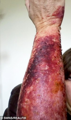 "*Shoot pictures to follow* COLLECT picture of the burns on the arm of Tracy Brookes that she got from having contact with hogweed.  A mum is one of the latest victims of the hogweed plant to emerge in recent weeks, and says it was the ""worst pain"" she'd ever felt in her life.  See NTI story NTIHOGWEED.  Tracy Brookes's arms and hands flared up in painful rashes and inch high blisters, and although she is now over the worst of it  it can take several years to heal completely.  Mrs Brookes, of Malvern, Worcestershire, said: ""I am still suffering with it, it's not so painful anymore, but more itchy now.  The scars are starting to be prominent.   It was horrendous, absolutely awful.  When the rash first came up, it was really painful. It was an excruciating burning sensation, and it felt like I had really bad pins and needles.  At their peak, the blisters stood an inch high off my arm, and I had a lot of them. They were painful and full of fluid. It was really scary.  It was the worst pain I have felt in my life."""