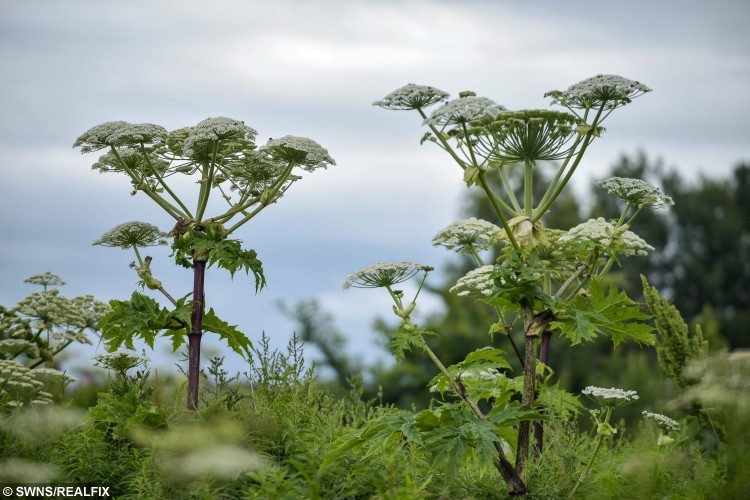 "The hogweed plant similar to that which caused burns on the arm of Tracy Brookes.  A mum is one of the latest victims of the hogweed plant to emerge in recent weeks, and says it was the ""worst pain"" she'd ever felt in her life.  See NTI story NTIHOGWEED.  Tracy Brookes's arms and hands flared up in painful rashes and inch high blisters, and although she is now over the worst of it  it can take several years to heal completely.  Mrs Brookes, of Malvern, Worcestershire, said: ""I am still suffering with it, it's not so painful anymore, but more itchy now.  The scars are starting to be prominent.   It was horrendous, absolutely awful.  When the rash first came up, it was really painful. It was an excruciating burning sensation, and it felt like I had really bad pins and needles.  At their peak, the blisters stood an inch high off my arm, and I had a lot of them. They were painful and full of fluid. It was really scary.  It was the worst pain I have felt in my life."""