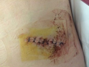 Collect picture shows the stab wound to Gavin's Abdomine.  See Ross Parry copy RPYFARMER : Gavin Watson was stabbed outside the Hare and Hounds pub at around 10pm on Sunday 20 April 2014, stabbed three times in the chest and abdomen. Michael Charles Turford, 32, was sentenced at York Crown Court Monday 16th. At an earlier hearing he had been found guilty of wounding with intent. He was sentenced to a further two years, to run concurrently, for possession of a knife.  Tom Maddick / Rossparry.co.uk