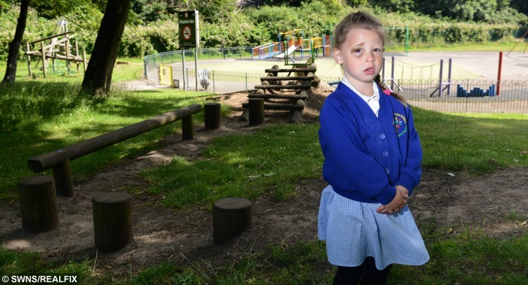Pictured - Ranee Hillier of Blackpool, Lancs., See Ross Parry Copy RPYPARK : These are the horrifying injuries sustained by a little girl during a freak playground accident. Ranee Hillier, four, slipped while stepping from one log to another in Watson Road park in Blackpool, Lancs., damaging the tissue in her right eye. The accident has left her with blurred vision and it's unclear yet whether she will have any long-standing damage.   Thomas Temple/rossparry.co.uk