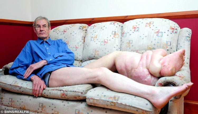 FILE PICTURE - Michael Cull, aged 66 from Rosehearty, Fraserburgh in Aberdeenshire. See Centre Press story CPELEPHANT; A pensioner cruelly branded a modern day 'Elephant Man' due to a massive deformity in his leg is preparing for a life-saving amputation. Michael Cull, 67, has endured more than decade of pain after his left leg ballooned to more than two stone in weight, making every day tasks an ordeal and suffering taunts from strangers. The retired Nasa computer technician suffers from elephantiasis which left his leg grossly enlarged due to obstruction of the lymphatic vessels. He previously accused the NHS of turning its back on him after planned surgery to remove excess flesh from the limb was called off.