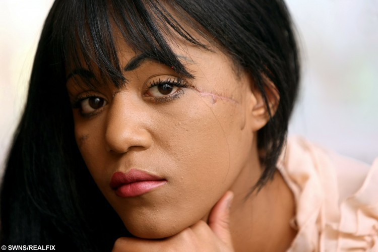 """File picture of model, Lasha Horton, NOVEMBER 28, 2012.  A devastated would-be model has vowed to get her career back on track and get behind the lens, after her pal rammed her head through a WINDOW. See SWNS story SWSLASH; Lasha Horton, 26, had her pretty face disfigured by the huge gash across her cheeks, nose and brow, after broken glass sliced her almost from ear-to-ear - narrowly missing her eye.  Lasha's dreams of becoming a model were slashed after thug pal Genavese Justin forced her head through a plate glass window in her own home, following a trivial row at a house party she threw - to celebrate landing a professional contract.  She said: """"My modelling dreams were shattered the second my best friend put my face through that window.  I'll never truly know why she did it - but I've forgiven her.  I'm much stronger now, and I'm determined to not let my scars ruin my life."""""""