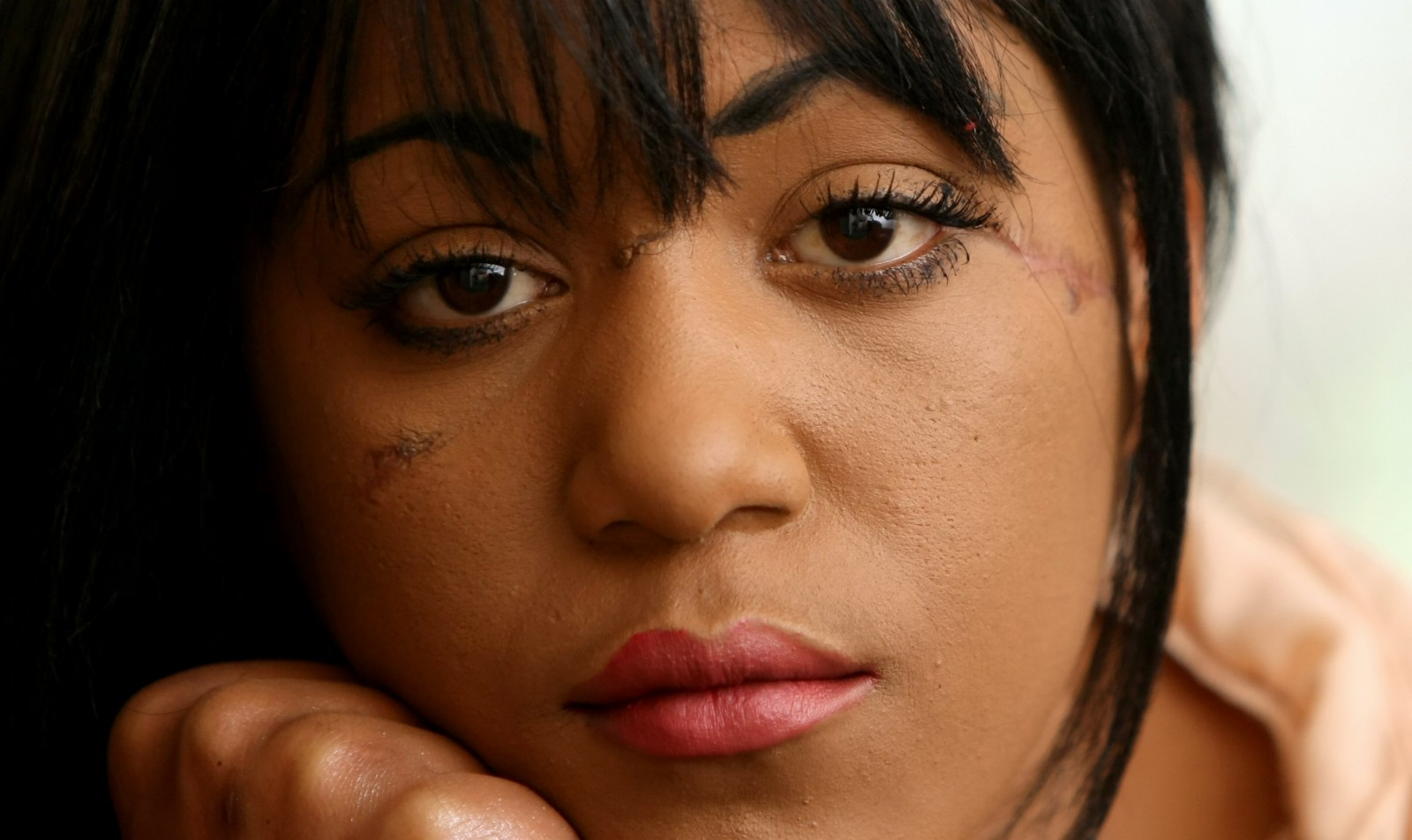'I'll make people see my scars are beautiful' Model disfigured by her BEST FRIEND