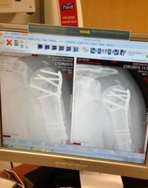 X-ray of Peter Cox's broken bones as he recovered from his injuries sustained in a fight over a parking space. See SWNS story SWNOSE: A man died four times and was left disabled for life after he was run over THREE TIMES in a row over a parking space. John Crowley wanted to park his classic green Mercedes 350 in the last spot on a street but was blocked by Peter Cox, who was standing in it reserving it for his son. Crowley, 44, edged his car slowly towards Mr Cox, who refused to move and was knocked to the ground. Mr Cox's son Craig saw what was happening and smashed the windscreen of Crowley's car in a bid to stop the row.