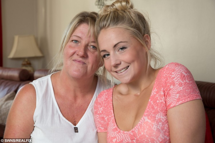 Aletia Davies, 20, from Almeley, Herefordshire, with her mum Janet. A battling young woman who was told she would never walk or talk after a horror car crash left her severely brain damaged has defied the odds - to become a MODEL.  See NTI story NTIMODEL.  Aletia Davies fought for life when she was left in a coma for four months after the car she was travelling in smashed into a tree at high speed.  The 16-year-old was left with a brain injury, left a quarter blind in both eyes and lost her hearing in one ear following the crash on October 26, 2011.  Her face was so badly damaged her jaw bone snapped in two and was removed completely and replaced by five metal plates.  She underwent four major operations on her face and shoulder and surgeons used old photographs of her to rebuild her shattered features.  Remarkably, despite having 200 stitches in her mouth and jaw, she only had one stitch in her face.  Doctors warned her she would never walk or talk again following her injuries but  Aletia has defied the medics and this week signed for a top modelling agency.