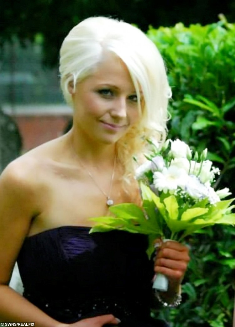 Aletia Davies in 2013 at her sisters wedding. A battling young woman who was told she would never walk or talk after a horror car crash left her severely brain damaged has defied the odds - to become a MODEL.  See NTI story NTIMODEL.  Aletia Davies fought for life when she was left in a coma for four months after the car she was travelling in smashed into a tree at high speed.  The 16-year-old was left with a brain injury, left a quarter blind in both eyes and lost her hearing in one ear following the crash on October 26, 2011.  Her face was so badly damaged her jaw bone snapped in two and was removed completely and replaced by five metal plates.  She underwent four major operations on her face and shoulder and surgeons used old photographs of her to rebuild her shattered features.  Remarkably, despite having 200 stitches in her mouth and jaw, she only had one stitch in her face.  Doctors warned her she would never walk or talk again following her injuries but  Aletia has defied the medics and this week signed for a top modelling agency.