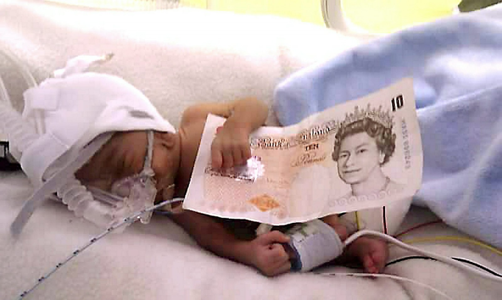 Miracle baby the size of a £10 note is about to do something unbelievable
