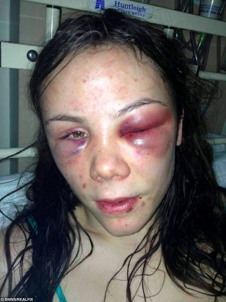 Injury picture of Summer Gregg from Sheffield, South Yorkshire who was tortured by three people she considered friends for over eight hours. The trio were sentenced to five years each at Sheffield Crown Court. See Ross Parry copy RPYTORTURE : A teenage girl was tortured for more than eight hours in a horror attack during which she was beaten with a metal chain and made to act like a dog, a court heard. The 17-year-old was spat on, beaten and repeatedly slapped in the terrifying attack at the hands of three yobs she thought were her friends. Jay Blades, James Canning and Amy Gaines subjected the victim to the degrading assault for more than eight-and-a-half hours and even filmed the attack. A court heard the teenager was beaten with a metal chain and piece of wood, had drink poured on her and was made to act like a dog after visiting Blades' flat.