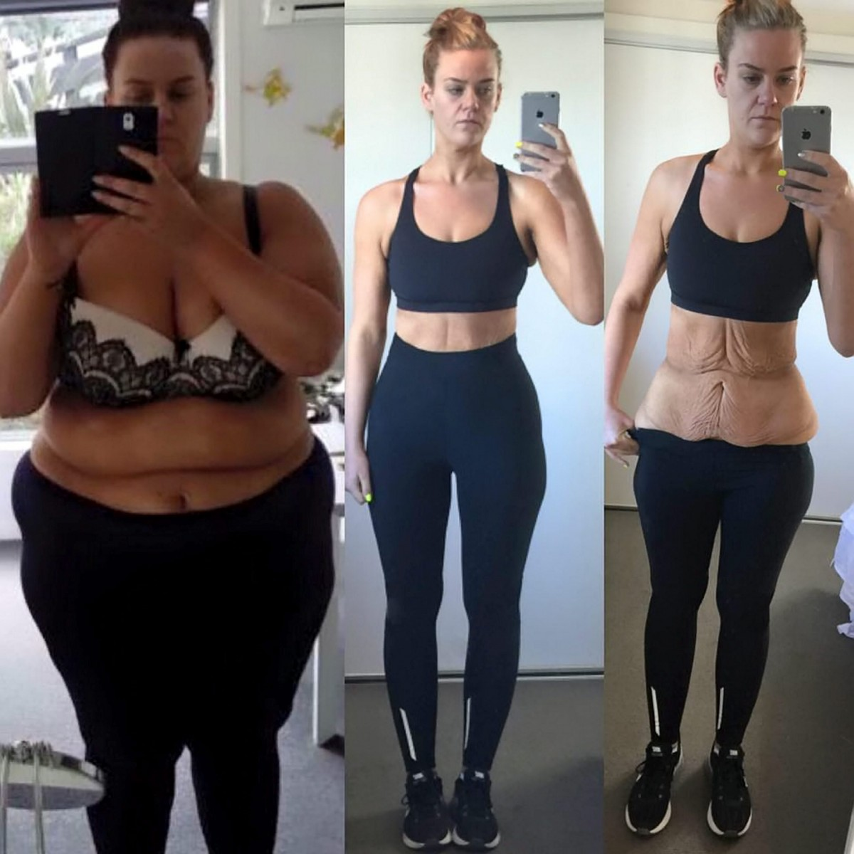 This woman agonised about revealing these images – 70k people believe she made the right decision