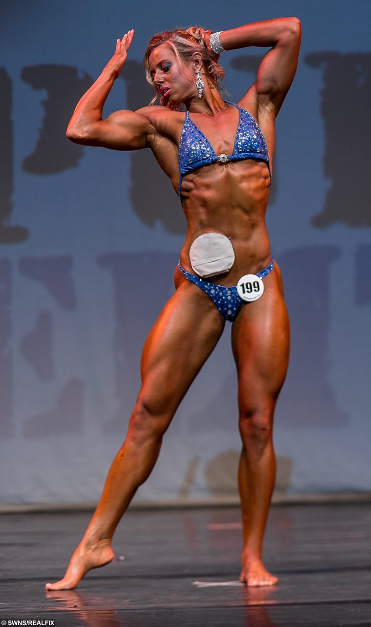 Zoey Wright pictured winning her class at her first body building show in Cornwall, September 28 2015. See SWNS story SWBODY; A woman who nearly died of a debilitating bowel condition and now has to wear a colostomy bag has bounced back to health - to become a BODYBUILDER. Brave Zoey Wright, 22, first noticed something was wrong when she lost two stone in just four weeks and she felt constantly weak. Doctors diagnosed her with Ulcerative Colitis - a painful, long-term condition, where the colon and rectum become inflamed. She suffered for two years with chronic fatigue and recurring diarrhoea, and even spent a month in hospital over fears her bowel could perforate causing fatal toxic shock.