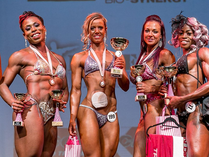 Woman Crowned Champion After Braving The Stage With Her Colostomy Bag Real Fix