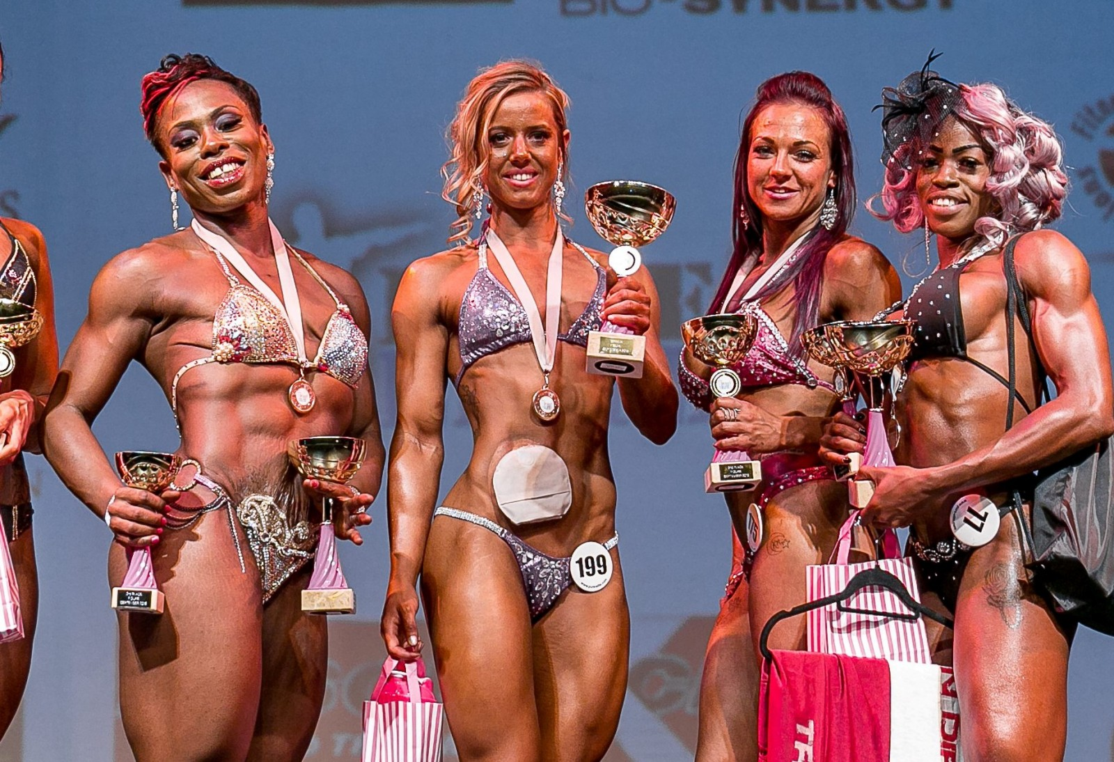 Woman crowned champion after braving the stage with her colostomy bag
