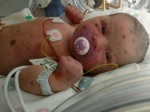 Brave 'blueberry muffin' baby's fight for life after being BORN with leukaemia