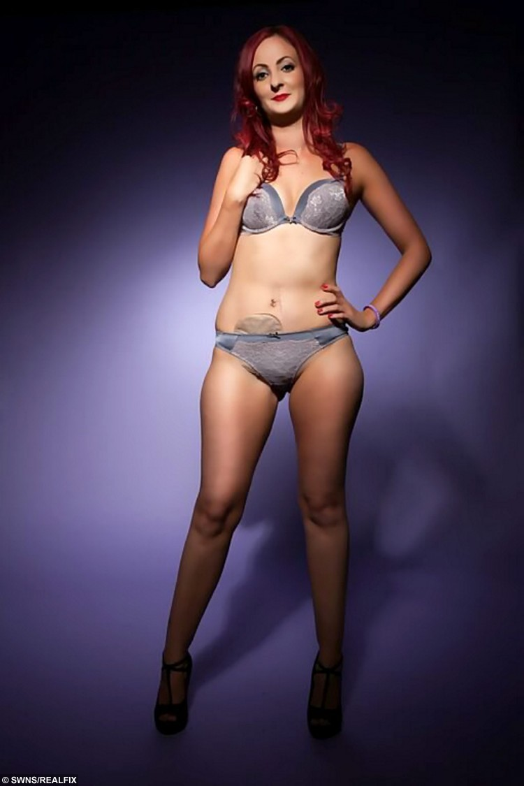 Stripper wearing ostomy bag