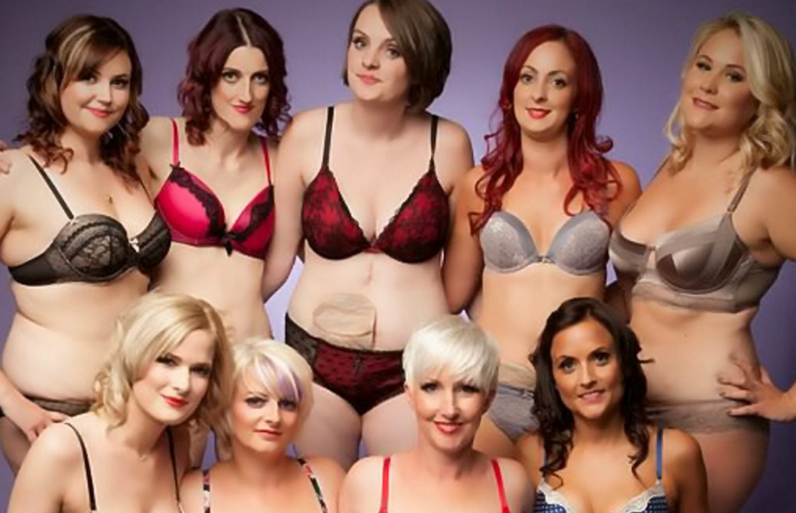 Women with Crohn's disease strip for very inspirational racy calendar