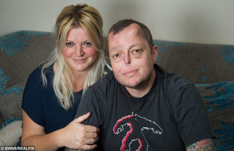 ***EMBARGOED NO WEB USE BEFORE 15.00 October 04 2015 BST/GMT*** Paul Singleton age 45 with his fiance Ellie Kirkman age 44. Ellie Kirkman's fiance Paul Singleton from Chorleywood was diagnosed with a cancerous tumour in his nose in 2013 and was told the only way to save his life was to have his nose removed. Paul underwent an eight hour operation to remove his nose later he had reconstuctive surgery by taking a  skin graft from his forehead , cartilage from his ribs and vessels from his arms but his nose collapsed within six months. But in march this year. Paul was offered bizarre ground-breaking surgery on the NHS that would mean groing a new nose on his forehead.