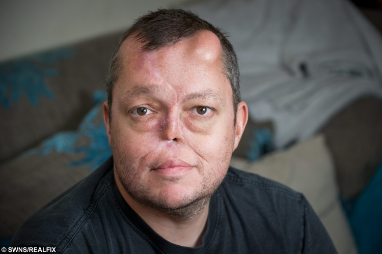 ***EMBARGOED NO WEB USE BEFORE 15.00 October 04 2015 BST/GMT*** Paul singleton age 45 at his home in Chorleywood 1st of October 2015. Ellie Kirkman's fiance Paul Singleton from Chorleywood was diagnosed with a cancerous tumour in his nose in 2013 and was told the only way to save his life was to have his nose removed. Paul underwent an eight hour operation to remove his nose later he had reconstuctive surgery by taking a  skin graft from his forehead , cartilage from his ribs and vessels from his arms but his nose collapsed within six months. But in march this year. Paul was offered bizarre ground-breaking surgery on the NHS that would mean groing a new nose on his forehead.