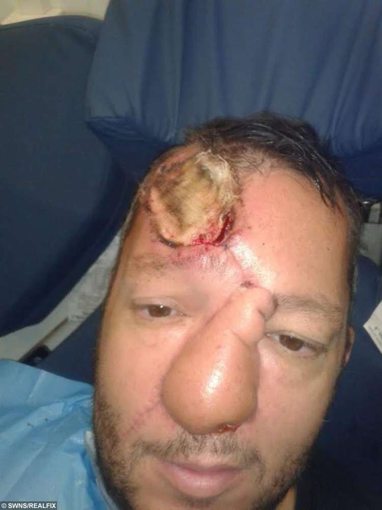 ***EMBARGOED NO WEB USE BEFORE 15.00 October 04 2015 BST/GMT*** Collect of Paul Singleton's first nose reconstuction in January 2014 that failed. Ellie Kirkman's fiance Paul Singleton from Chorleywood was diagnosed with a cancerous tumour in his nose in 2013 and was told the only way to save his life was to have his nose removed. Paul underwent an eight hour operation to remove his nose later he had reconstuctive surgery by taking a  skin graft from his forehead , cartilage from his ribs and vessels from his arms but his nose collapsed within six months. But in march this year. Paul was offered bizarre ground-breaking surgery on the NHS that would mean groing a new nose on his forehead.