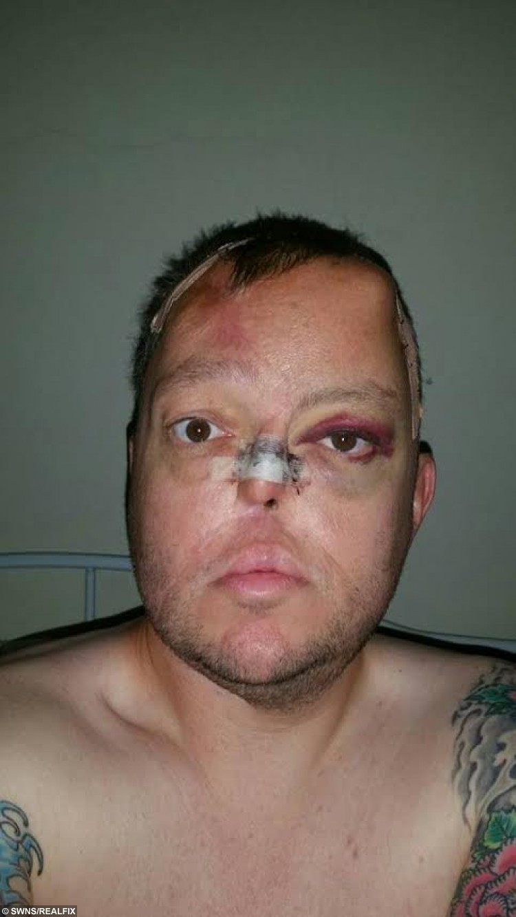 ***EMBARGOED NO WEB USE BEFORE 15.00 October 04 2015 BST/GMT*** Collect of Paul Singleton after an operation in September 2015. Ellie Kirkman's fiance Paul Singleton from Chorleywood was diagnosed with a cancerous tumour in his nose in 2013 and was told the only way to save his life was to have his nose removed. Paul underwent an eight hour operation to remove his nose later he had reconstuctive surgery by taking a  skin graft from his forehead , cartilage from his ribs and vessels from his arms but his nose collapsed within six months. But in march this year. Paul was offered bizarre ground-breaking surgery on the NHS that would mean groing a new nose on his forehead.