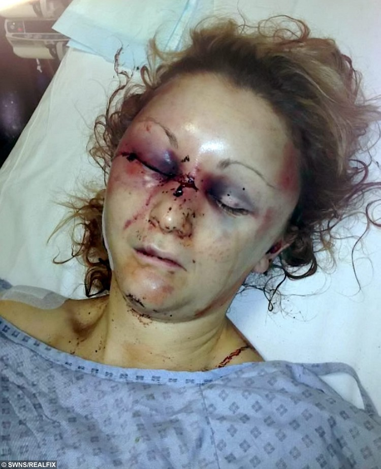 FILE PICTURE - Collect of Zoe Dronfield in hospital after a brutal eight-hour attack by ex-boyfriend Jason Smith. See NTI story NTIHARASS; A woman who was almost killed by her crazed stalker ex-boyfriend has launched a charity to support fellow domestic abuse victims. Businesswoman Zoe Dronfield, 39, suffered a bleed on the brain and a neck wound after partner Jason Smith, 32, launched a ferocious eight-hour attack on her on February 2 last year. Smith stabbed her in the neck and stamped on her head leaving her with a bleed on the brain, a cracked cheekbone and a gash just 1cm from her jugular vein. When she regained consciousness she found Smith slashing his wrists in a suicide bid but had no memory of the assault. She feared he would escape justice until she hired a hypnotherapist who helped her piece together the details of the attack.