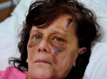 Gran savagely beaten with plank of wood as she bravely confronted stalker