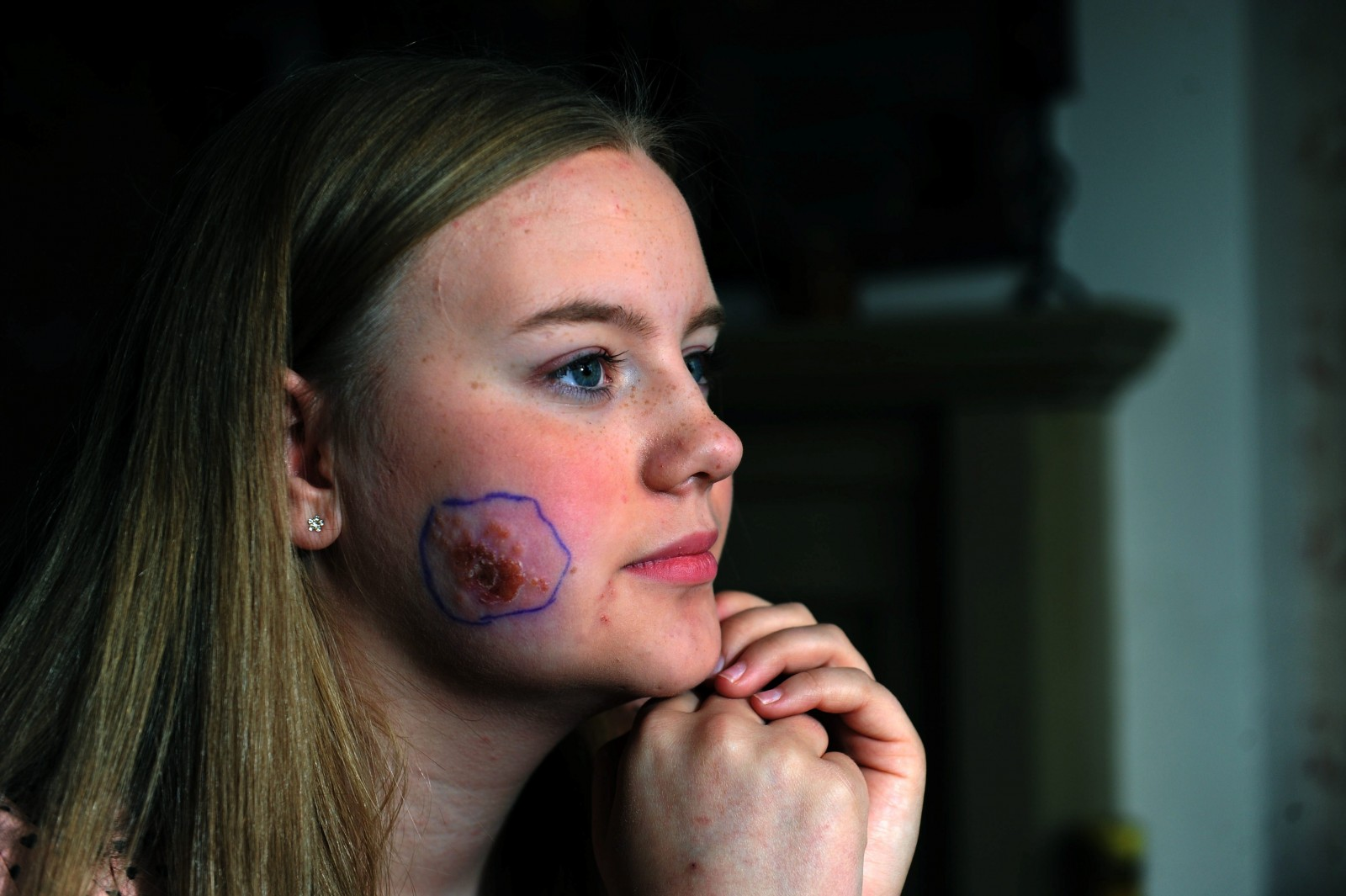 Teenager wakes up with two sinister puncture wounds on her cheek