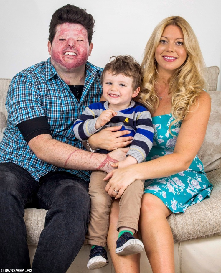 """Sent under embargo - no use before 18.00pm October 11 2015 Pia Christopheros with her husband Andreas from Truro, Cornwall, who was was left scarred for life after a man hurled acid in his face. Also pictured is the couple's two-year-old son Theo. See SWNS story SWACID; A man has been jailed for carrying out an acid attack on the WRONG victim leaving a father-of-one scarred for life in a case of mistaken identity. Property developer Andreas Christopheros, 29, suffered a permanent loss of vision and horrific burns when David Phillips flung the corrosive material in his face. Phillips, 48, attacked Andreas on his own doorstep in Truro, Cornwall, after travelling more than 300 miles from his own home in Hastings, East Sussex. But police yesterday said he was not the intended victim and described it outside court as a revenge attack on the wrong man that was """"Ill-prepared and ill executed."""""""