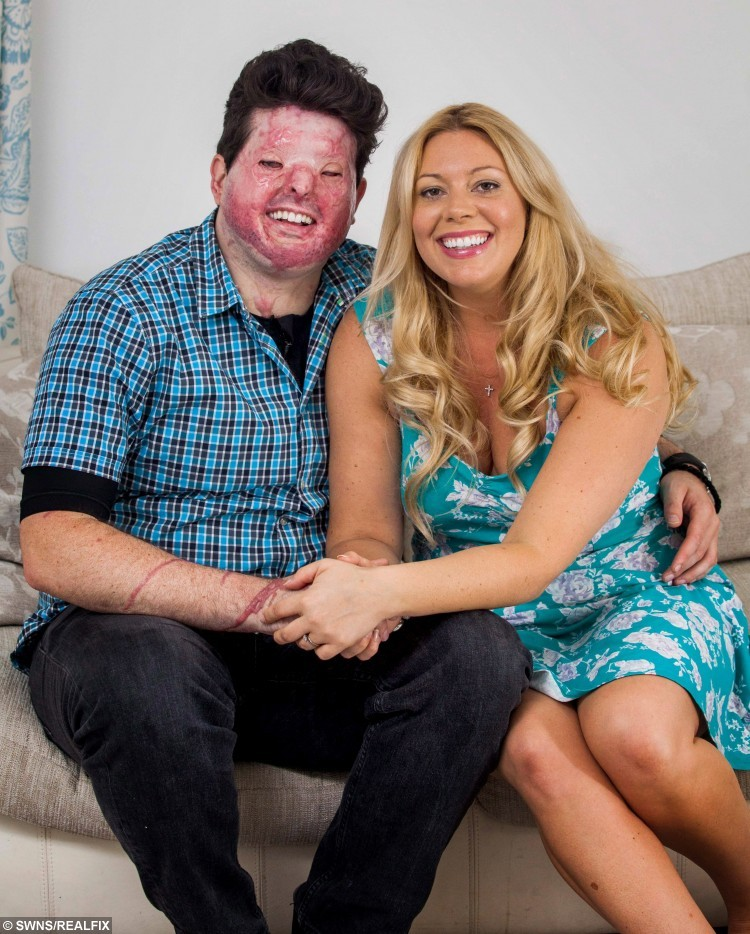 """Sent under embargo - no use before 18.00pm October 11 2015 Pia Christopheros with her husband Andreas from Truro, Cornwall, who was was left scarred for life after a man hurled acid in his face. See SWNS story SWACID; A man has been jailed for carrying out an acid attack on the WRONG victim leaving a father-of-one scarred for life in a case of mistaken identity. Property developer Andreas Christopheros, 29, suffered a permanent loss of vision and horrific burns when David Phillips flung the corrosive material in his face. Phillips, 48, attacked Andreas on his own doorstep in Truro, Cornwall, after travelling more than 300 miles from his own home in Hastings, East Sussex. But police yesterday said he was not the intended victim and described it outside court as a revenge attack on the wrong man that was """"Ill-prepared and ill executed."""""""