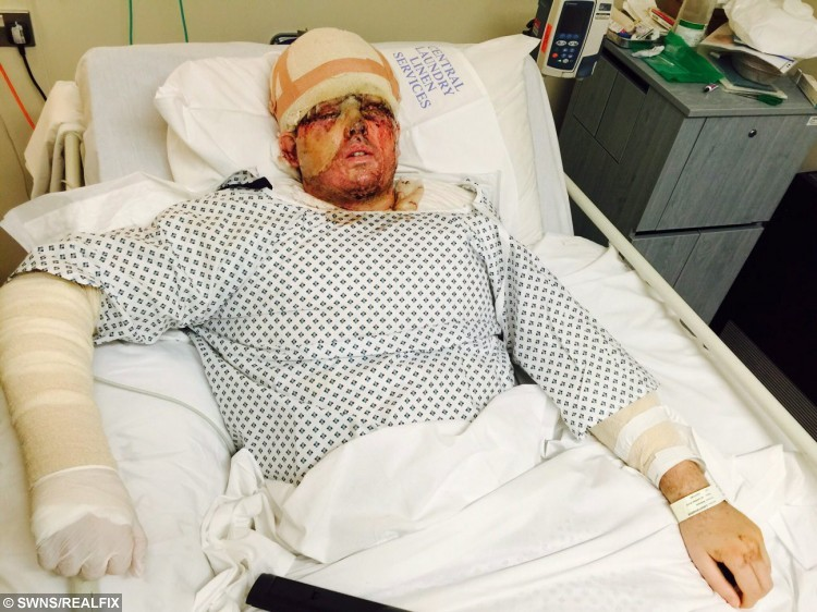 """Sent under embargo - no use before 18.00pm October 11 2015 Collect photo of Andreas Christopheros from Truro, Cornwall pictured in hospital recovering from a acid attack. See SWNS story SWACID; A man has been jailed for carrying out an acid attack on the WRONG victim leaving a father-of-one scarred for life in a case of mistaken identity. Property developer Andreas Christopheros, 29, suffered a permanent loss of vision and horrific burns when David Phillips flung the corrosive material in his face. Phillips, 48, attacked Andreas on his own doorstep in Truro, Cornwall, after travelling more than 300 miles from his own home in Hastings, East Sussex. But police yesterday said he was not the intended victim and described it outside court as a revenge attack on the wrong man that was """"Ill-prepared and ill executed."""""""