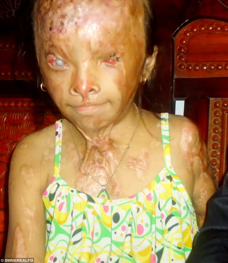 Nhi from Vietnam who suffered a horrific acid attack.  A kind-hearted hairdresser has raised thousands of pounds to pay for life-changing treatment for a ten-year-old girl who was almost blinded in a horrific acid attack.  See SWNS story SWACID.  Little Nhi (corr) was just six years old when a cruel mystery attacker her covered her in acid, burning her entire body and leaving her blind in one eye and with minimal sight in the other.  When Wendy Vu, a hairdresser from Bexhill-on-Sea, West Sussex, found the girl while travelling around Vietnam, she knew she needed to do something to help save her.  Since that fateful meeting last year, Wendy has raised more than Ã5,000 to help pay for treatment for the little girl, who is now ten years old.