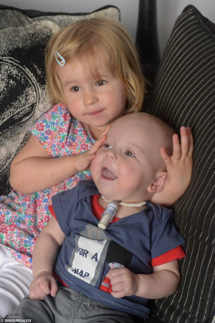 """Little Charlie Reynolds pictured with sister Isabella. See SWNS story SWBABY: A mum and dad long to be woken in the night by their screaming newborn - because a rare condition has left a youngster unable to laugh or CRY. Charlie Reynolds was born with a rare condition called vocal cord palsy, which affects only 200 babies in the UK every year. The four-month-old was born in May to parents Sophie, 26, and Scott, 31, but needed resuscitation after he struggled to breathe - which has left him unable to make a sound. Mum-of-two Sophie said: """"Now he can't make a sound - we long for him to wake us up in the middle of the night, but he's our silent little angel."""""""