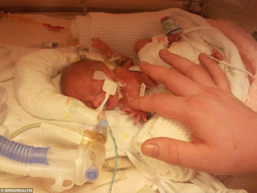 Miraculous The Tiny Premature Baby Who Was Given A One Per Cent Chance Of Largest Home Design Picture Inspirations Pitcheantrous