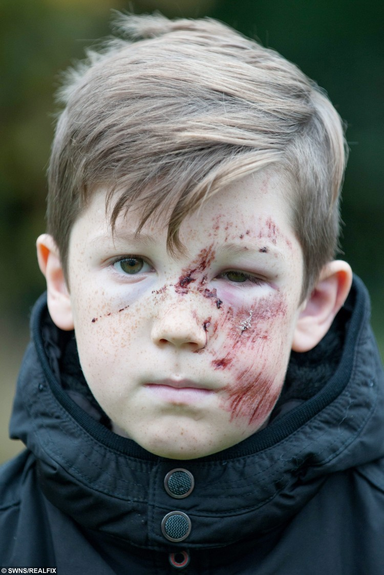 """Ashley Barrs, 10, who was injured in a hit and run incident on Wednesday evening at around 6pm.  Police are hunting a hit-and-run Audi driver who ploughed into a schoolboy at high speed leaving him with shocking facial injuries.  See NTI story NTIHIT.  Ten-year-old Ashley Barrs was playing football with his 12-year-old brother Jaden and two friends when he was hit at 6pm on Wednesday (4/11).  A white Audi A3 ploughed into him on Neachells Lane in Wednesfield, West Mids., sending him hurtling 10ft into the air.  Ashley was hit with such force the wing mirror was torn off the car but despite Ashley lying bleeding in the road the driver sped off.  The schoolboy, who was knocked unconscious, was rushed to hospital where he underwent a CT scan and an X-ray for injuries to his ankle, shoulder and stomach.  But doctors at New Cross Hospital in Wolverhampton, West Mids., told him it was a """"miracle"""" he had no breaks or serious injuries.  His mum Jane Keates, 35, yesterday posted shocking pictures of Ashley's injured face, which is covered in cuts and bruises, on her Facebook page.  The family are appealing for information about the driver of the Audi who sped off leaving the youngster lying in the road."""