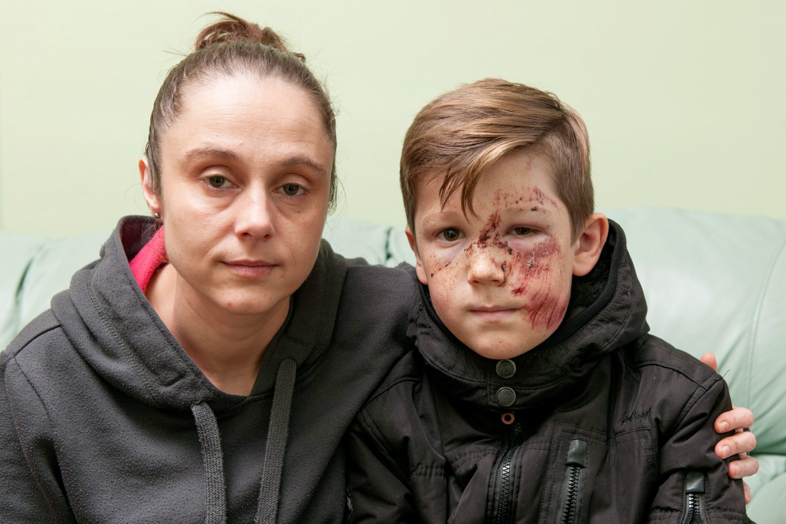 Can you help? Schoolboy left for dead after shocking hit-and-run