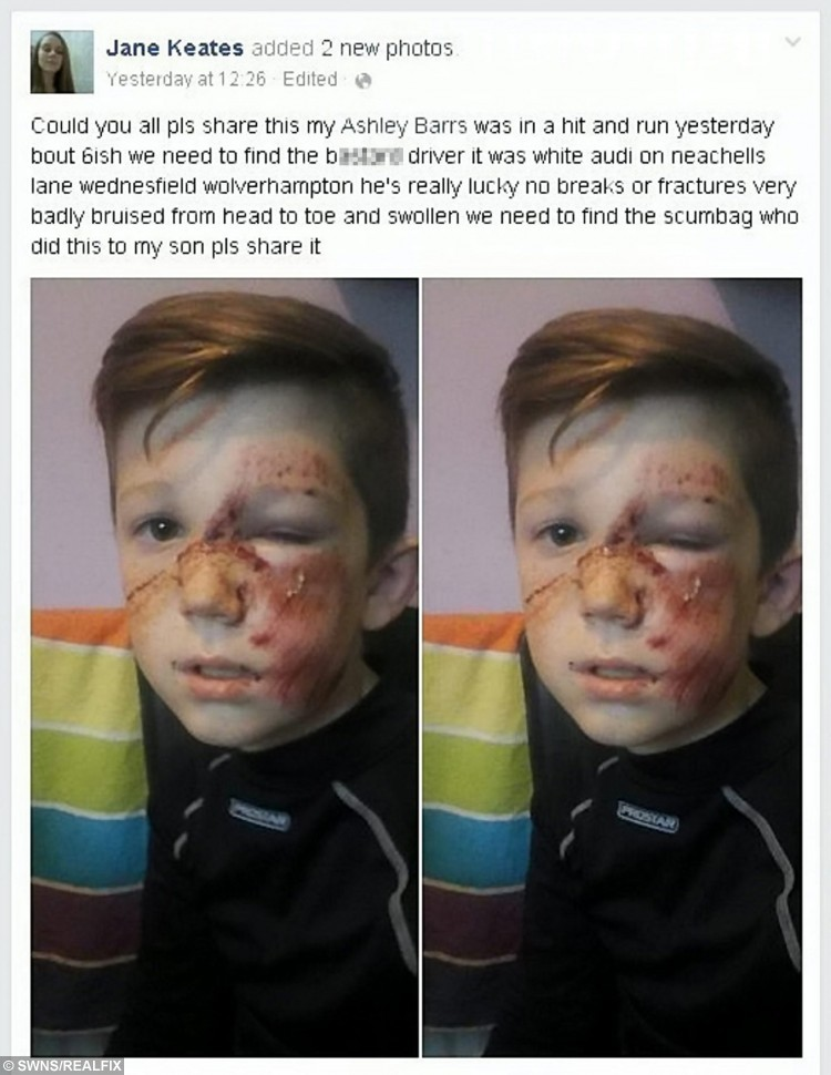 """The picture of Ashley Barrs injuries posted on his mum Jane Keates' Facebook page.  Police are hunting a hit-and-run Audi driver who ploughed into a schoolboy at high speed leaving him with shocking facial injuries.  See NTI story NTIHIT.  Ten-year-old Ashley Barrs was playing football with his 12-year-old brother Jaden and two friends when he was hit at 6pm on Wednesday (4/11).  A white Audi A3 ploughed into him on Neachells Lane in Wednesfield, West Mids., sending him hurtling 10ft into the air.  Ashley was hit with such force the wing mirror was torn off the car but despite Ashley lying bleeding in the road the driver sped off.  The schoolboy, who was knocked unconscious, was rushed to hospital where he underwent a CT scan and an X-ray for injuries to his ankle, shoulder and stomach.  But doctors at New Cross Hospital in Wolverhampton, West Mids., told him it was a """"miracle"""" he had no breaks or serious injuries.  His mum Jane Keates, 35, yesterday posted shocking pictures of Ashley's injured face, which is covered in cuts and bruises, on her Facebook page.  The family are appealing for information about the driver of the Audi who sped off leaving the youngster lying in the road."""