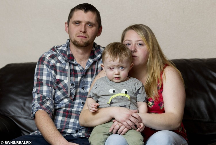 18 month year old Oscar Webb has lost an eye after being hit by a drone, with his parents Rick Webb  and Amy Roberts, Stourport on Severn, November 28 2015. See NTI story NTIDRONE; A devastated couple have issued an urgent warning to parents after their 18-month-old son was struck in the face by an out-of-control drone and lost an EYE. Little Oscar Webb was playing in a neighbour's garden while his dad watched family friend Simon Evans, 29, fly his Ã300 'quadcopter' device with a remote control. But it clipped a tree as he was trying to land it and spiralled out of control, hitting the toddler in the face. Dad Rick Webb, 30, could only watch as the propellers sliced through Oscar's right eye, causing him to scream out in pain. Desperate Rick phoned for an ambulance and paramedics dashed to the house in Stourport-on-Severn, Worcs., at around 1pm on October 10.