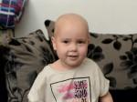 Brave little Skyla's battle with cancer after it was dismissed as tonsillitis