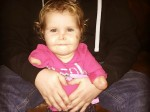 Brave toddler who lost all her limbs to meningitis is fitted with her first prosthetic legs