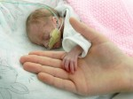 Premature baby weighing less than a bunch of grapes goes home TWO WEEKS before her due date