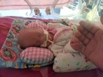 Parents refused to turn off their baby's life support machine – see what happened next