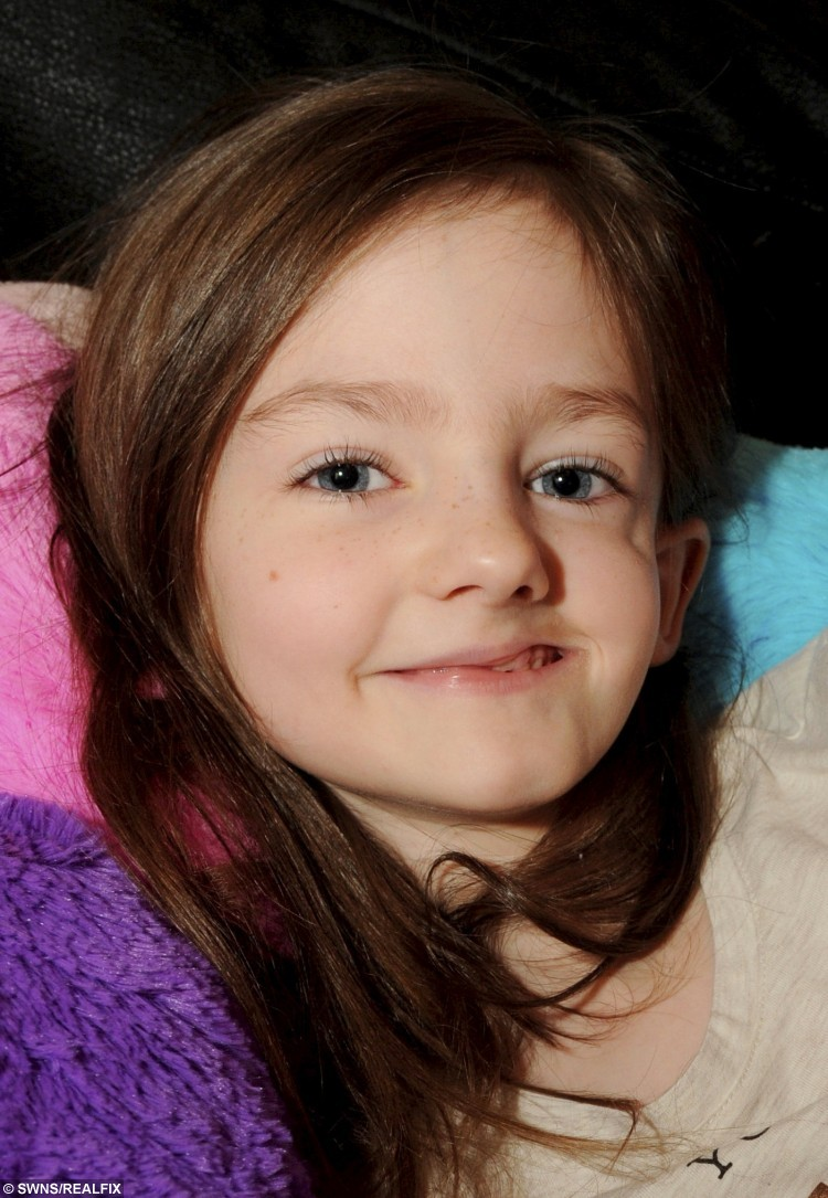 """Alesha Wilcock (7), who has Parry-Romberg syndrome.  Most seven-year-olds would rather stay at home and play then go to school, but Alesha Wilcock is no ordinary little girl.  See MASONS story MNFACE.  She was diagnosed with Parry-Romberg syndrome when she was four. The rare disorder causes half of the skin and soft tissue on one side of her face to deteriorate and shrink.  Her mum, Lisa Wilcock, 27, said the condition makes Alesha's face look like its eating itself.  The pregnant mum-of-three said: """"Parry-Romberg syndrome is her body attacking itself. When she was younger I noticed her face looked different. If you look at her face it looks twisted. You can see her cheekbones and skull. But she just gets on with it, she takes her medication twice a day and never complains."""""""