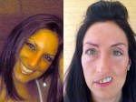 A mother has been left with 'half a face' after doctors remove orange-sized tumour from her cheekbone