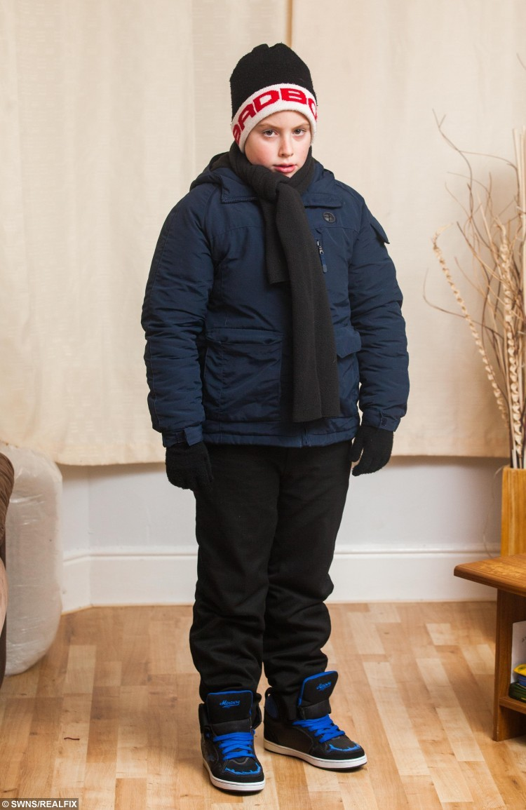 Vincent Dinan from Paignton, Devon, wearing all of the clothes that he needs in order to step outside of his home. Vincent suffers from a rare allergy to the cold which could kill him. 13/01/2016  See SWNS story SWCOLD; Spare a thought for schoolboy Vincent Dinan as temperatures plummet - he suffers from a rare allergy to the COLD which could KILL him. The ten-year-old breaks out in hives at a sudden drop in temperature, which can cause a potentially-fatal anaphylactic shock. His dedicated father Gary, 34, has to watch him around-the-clock to ensure he is not exposed to the cold. The heating is kept on 24-hours a day at home and Vincent has to be rushed into school after walking there with layers of jumpers and coats.