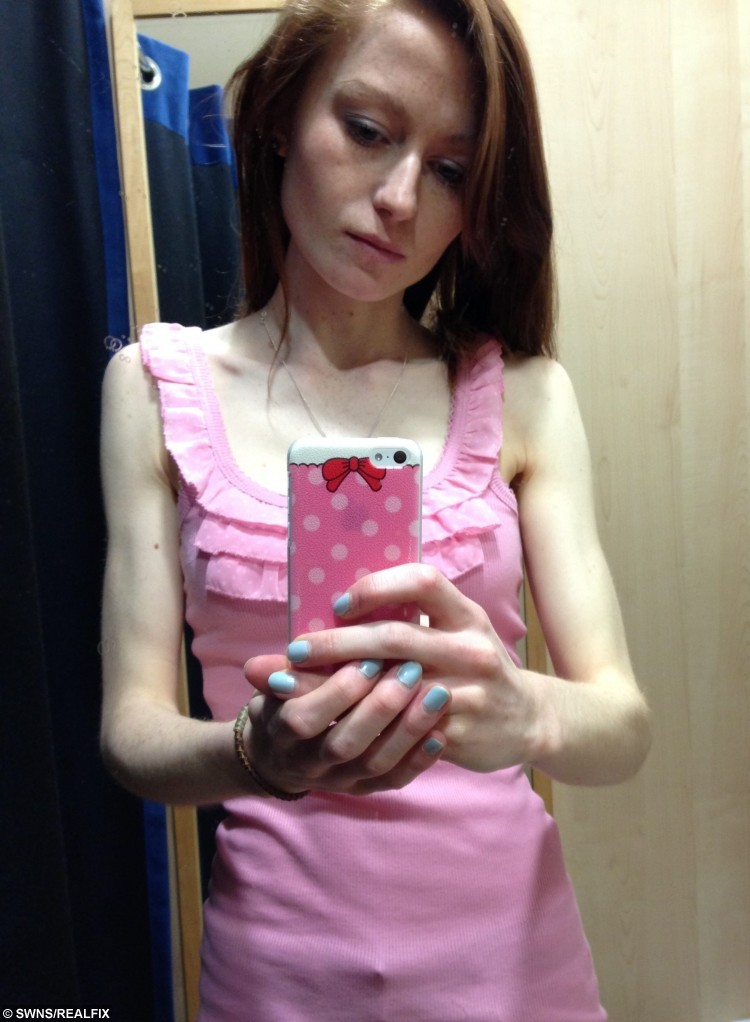 Collect photograph of former anorexic Nicola Davis pictured in 2014 when her weight was at it's lowest.A brave teenager whose eating disorder saw her weight plummet to six stone has published a cookbook of the recipes which helped her recover. See SWNS story SWBOOK. Former anorexic Nicola Davis, 19, began starving herself two years ago and quickly became dangerously thin, shedding more than two stone. She exercised frequently and survived on minus calories but continued cooking in spite of her illness, creating tasty treats for her family - which she wouldn't touch. But her jealously soon got the better of her and, unable to watch her family try her recipes without her, she slowly started eating properly again.