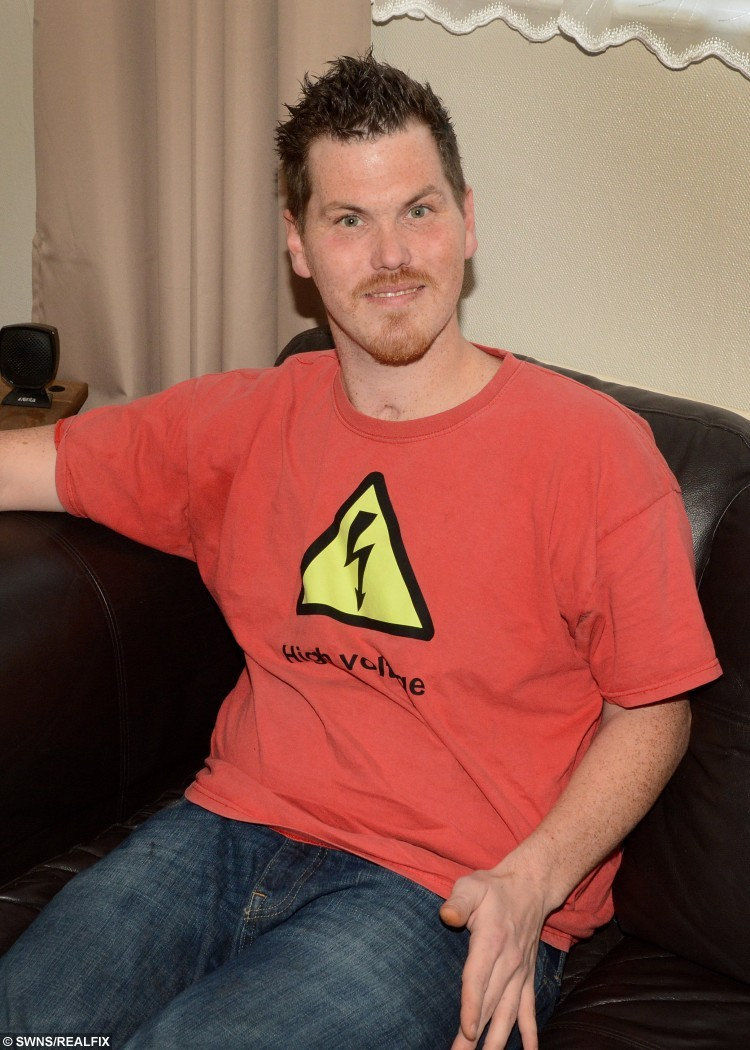 Ash Coe who survived a 33,000 volt electric shock. See SWNS story SWSHOCK; A man suffered three heart attacks and had his heart stop for 35 minutes after suffering a 33,000-volt electric shock which should have killed him. Ash Coe, 31, who lives in Forches with his mum Debbie Geall and stepdad Paul Winterall corr, was working at Knockworthy Farm in Huntshaw when the accident happened in March 2013. He has very little recollection of the accident, and lost six years' memory leaving him thinking he was 23 when he woke up. Ash was unconscious for 13 days and spent a total of four months at Royal Devon and Exeter Hospital before having to learn to walk and talk again.